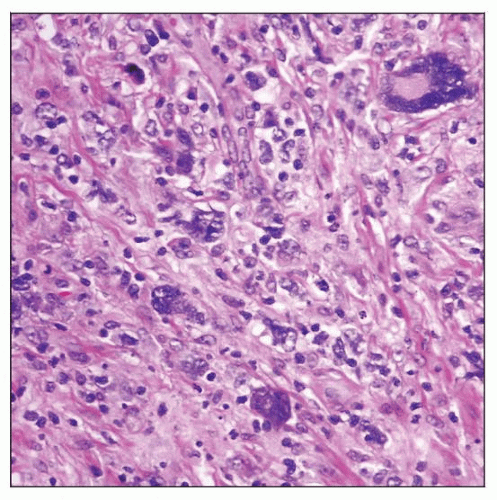 Linfoma de Hodgkin clásico linfocitos consumidores