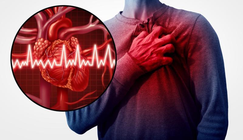 síntomas de lupus palpitaciones del corazón