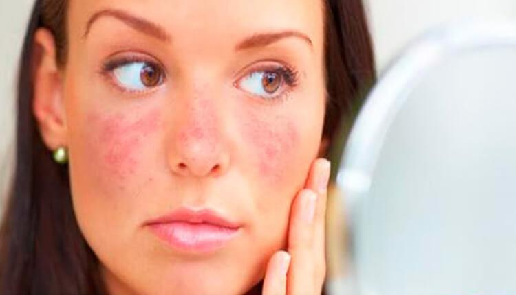 Qué es la enfermedad del lupus? - Enfermedad de la mariposa