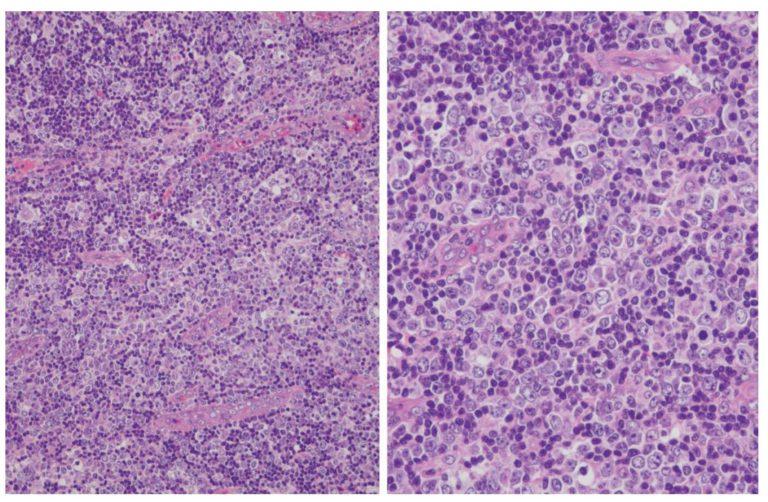 Lymphome T angio-immunoblastique